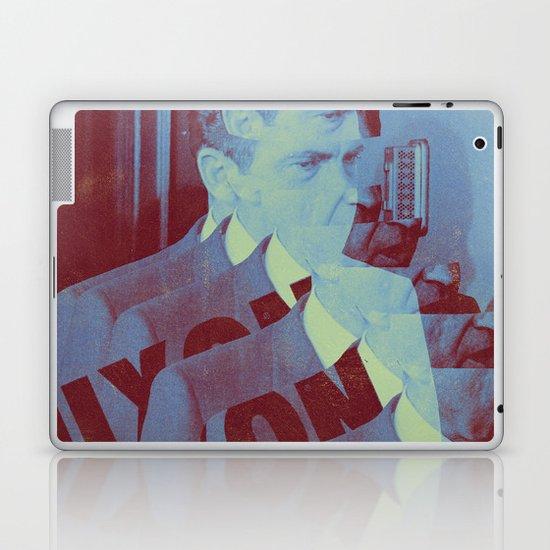 Nixon Laptop & iPad Skin