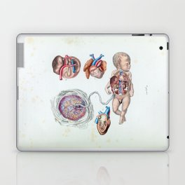 Vintage Anatomy of a Human Infant in Womb Laptop & iPad Skin