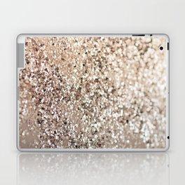 Sparkling GOLD Lady Glitter #1 #decor #art #society6 Laptop & iPad Skin
