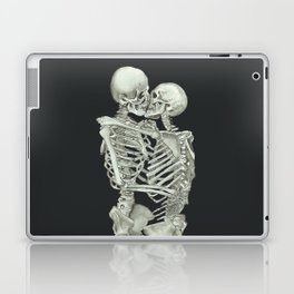 Valentine's Day: Skeleton Kiss Laptop & iPad Skin