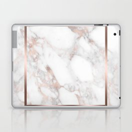 Luxury Rose-gold Faux Marble Laptop & iPad Skin