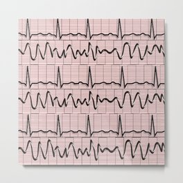 Cardiac Rhythm Strips EKG Metal Print