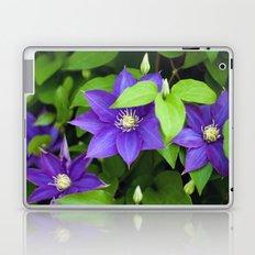 Triplets  Laptop & iPad Skin