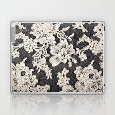 black and white lace- Photograph of vintage lace Laptop & iPad Skin