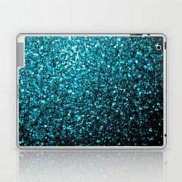 Beautiful Aqua blue glitter sparkles Laptop & iPad Skin