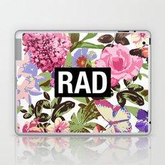 RAD Laptop & iPad Skin