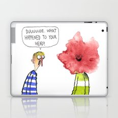 What Happened To Your Head? Laptop & iPad Skin