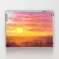 Under the sun Laptop & iPad Skin