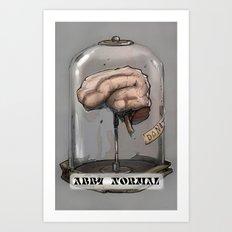 Abby Normal Art Print