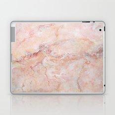Pink Marble Laptop & iPad Skin