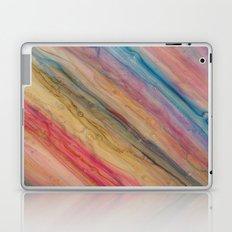 p-go 10 Laptop & iPad Skin
