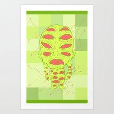 Conjuntivitis Art Print