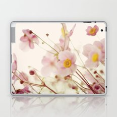 Aspire Laptop & iPad Skin