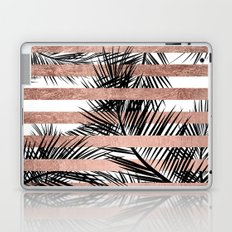 Trendy tropical palm trees chic rose gold stripes Laptop & iPad Skin