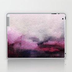 Difference Laptop & iPad Skin