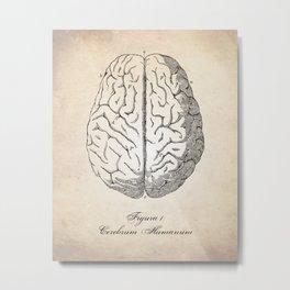 Human Anatomy Brain Art Print Metal Print